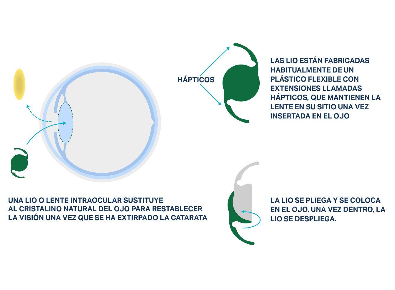 Imagen de un ojo que muestra cómo se sustituye el cristalino por una lente intraocular (LIO) durante la cirugía de cataratas.