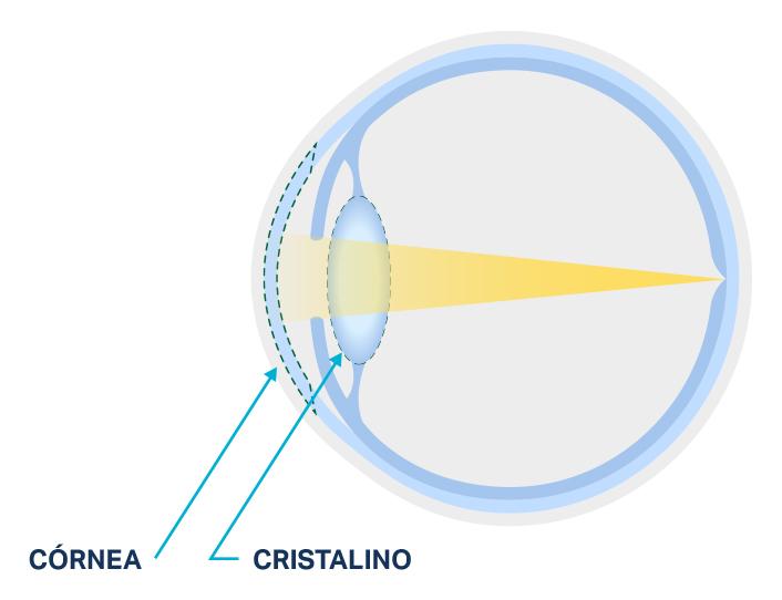 Diagrama de un cristalino normal en comparación con uno enturbiado de un ojo con cataratas.