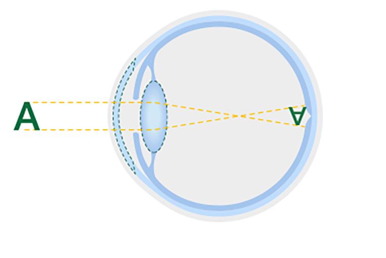 Diagrama de un cristalino sano.