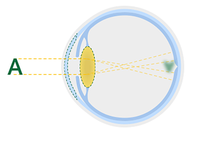 Diagrama del cristalino opacificado de un ojo con cataratas.