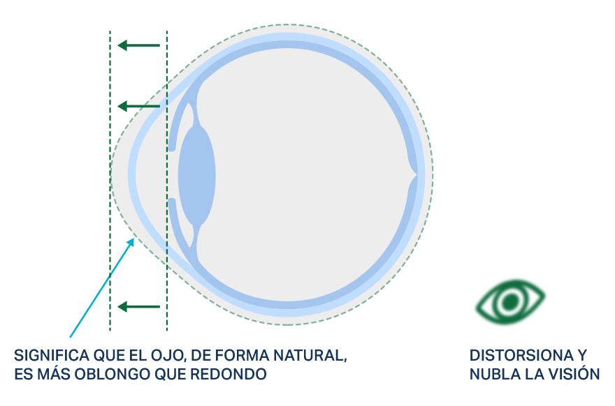 Imagen de la forma de un ojo con astigmatismo.