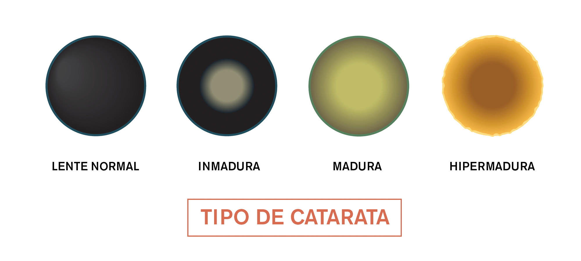 Tipo de Catarata - illustrazione